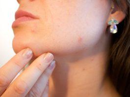 Undici i metodi per ottenere eliminare l'acne