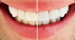 Dental whitestrips, come si usa, ingredienti, composizione, funziona