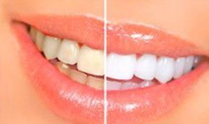 Dental whitestrips, effetti collaterali, controindicazioni
