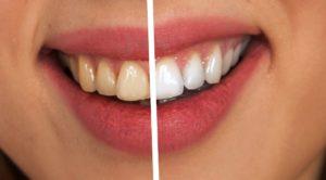 Denta Black, effetti collaterali, controindicazioni