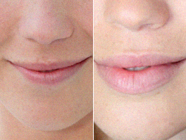 Magni Lips, Italia, originale, in farmacia