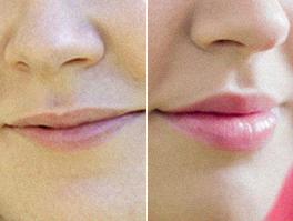 Magni Lips, effetti collaterali, controindicazioni