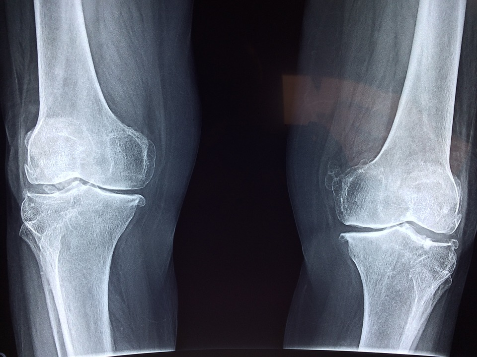 Osteoton, Italia, originale, in farmacia 2
