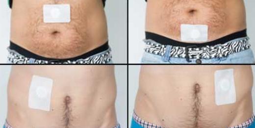Prostaplast, effetti collaterali, controindicazioni