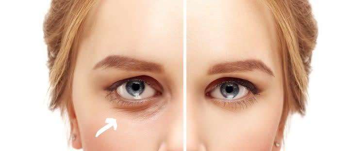 EyeSkin, come si usa, ingredienti, composizione, funziona