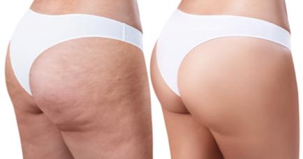 Anti-cellulite Lotion SKL, effetti collaterali, controindicazioni