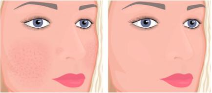 Capillary Clear, effetti collaterali, controindicazioni