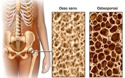 Osteoactive, prezzo, farmacia, amazon, dove si compra