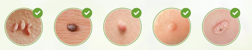 Skincell Pro, effetti collaterali, controindicazioni