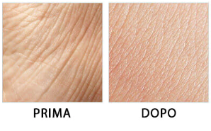 DermaVix, prezzo, farmacia, amazon, dove si compra