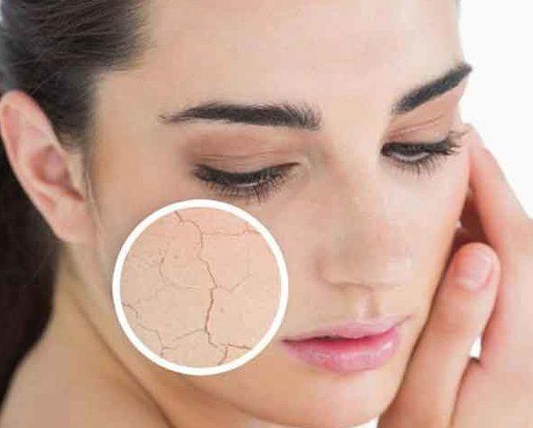 Skin Scrubber, prezzo, amazon, dove si compra