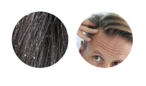 Pro-Hair 10, Italia, originale, in farmacia