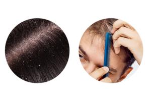 Pro-Hair 10, prezzo, farmacia, amazon, dove si compra
