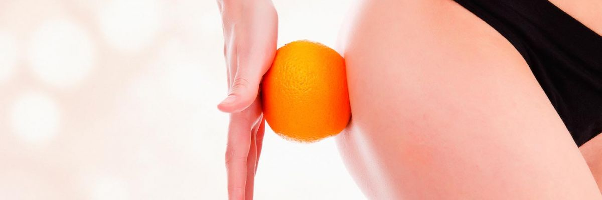 Come liberarsi dalla cellulite