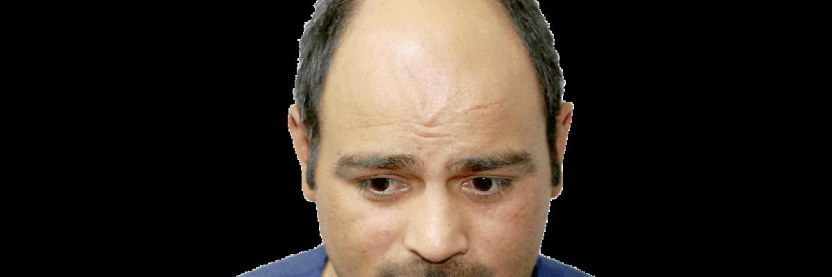 Perdo capelli, miti e verità