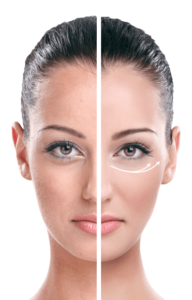 EyeLift, effetti collaterali, controindicazioni
