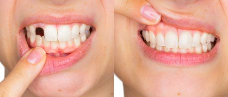Happy Smile, composizione, funziona, come si usa, ingredienti