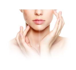 Clear Skin, come si usa, ingredienti, funziona, composizione