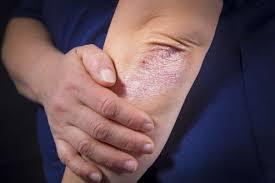 Mycelix, effetti collaterali, controindicazioni