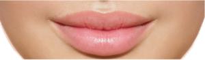 Vip's Lips, controindicazioni, effetti collaterali
