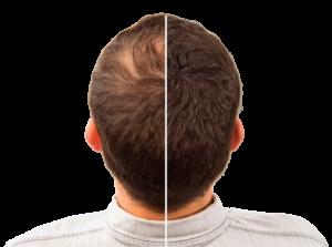 Hair Intense, effetti collaterali, controindicazioni