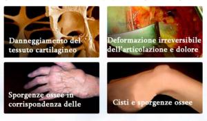 Arthromagic, composizione, come si usa, ingredienti, funziona