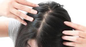 Hair Grow Max, come si usa, ingredienti, composizione, funziona
